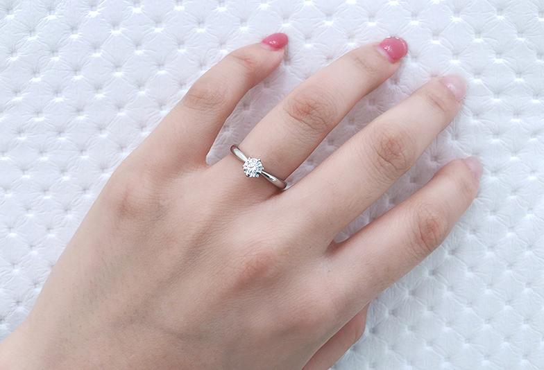 婚約指輪 アレルギー